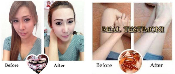 gluta-over-white-before-after